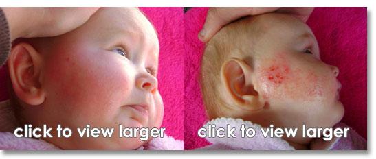 Infant Eczema