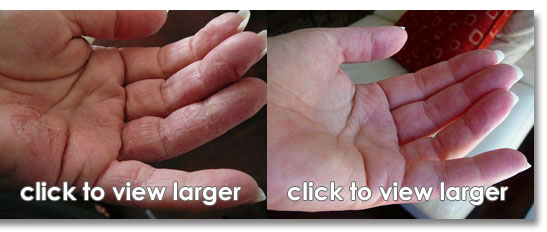 What are the significant differences between Psoriasis and Eczema 2